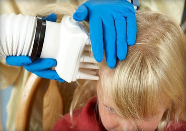 AirAllé Lice Treatment